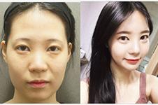 """韓國脂肪填充有效果嗎?""""老相""""必看面部脂肪移植案例!"""
