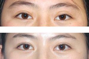 韓國eyemagic李喜文醫院環境分析,地址導航通通告訴你