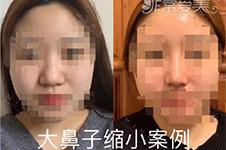 韓國縮小鼻翼多少錢?有幾種方式可以選擇