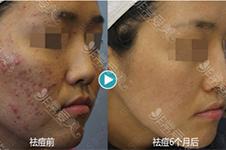 韩国BLS皮肤管理做的怎么样?为什么好多人都在捧他们家?
