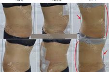 韩国医院吸脂整形真能瘦!手术便宜还不反弹!