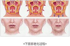 韓國bio樸東滿面頸部拉皮術做的好嗎 效果好不好案例說了算