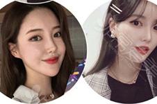韓國愛她整形好不好?本地口碑主要是做什么手術居多?