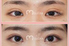 韩国医院割双眼皮一般是多宽 太宽了想要变窄难度大不大?