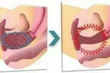 产后子宫松弛可以同房吗?为什么一直有炎症没办法消除?