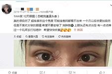 韩国1mm整形医院主刀院长资历介绍贴,都彦祿曾在BK干过!