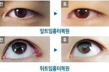 整形割双眼皮后悔莫及,韩国医院全面说明真实原因!