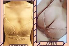 韩国医院解答假体隆胸后出现手感差异以及边缘疼痛原因!