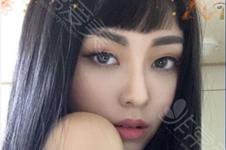 韩国这几家自然风鼻子整形模版,说不心动是假的!