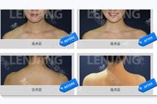 解答:瘦肩针究竟能不能打?有哪些危害?颈椎病能打吗?