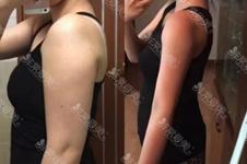 抽出来10斤脂肪图片大概什么样?常见吸脂方式你知道几种?