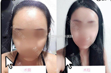 怎么縮小額頭?是拉頭皮嗎?額頭縮小術和植發哪個好?