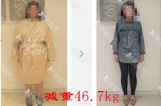 内脏脂肪怎么减有效?韩国首尔slim外科医院胃束带手术行吗?