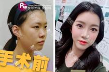 韩国鼻子整形医院中POP清潭李炳玟Kowon三家各有哪些特色?
