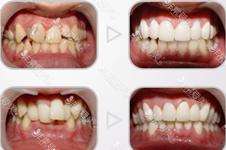 牙齒整形哪家好?韓國柔欣愛牙科醫院為什么被明星選擇?
