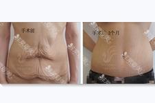 减肥后的赘皮怎么办?切除手术危险吗?案例图效果如何?