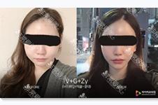 為什么韓國齊娥牙科也能做輪廓?韓國本地制度其實是這樣!