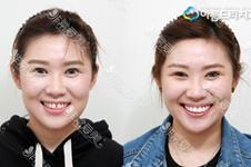 韓國牙齒美容價格大致多少錢?延世泉和安特麗案例分享!