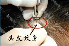 天生頭發少可以加密植發嗎?在韓國如果不能做植發怎么辦?