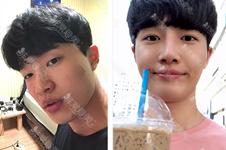 韓國秀美顏怎么樣?男士有必要整眼鼻、下巴么?變化大嗎?