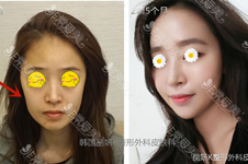 韓國臉部填充好嗎?有幾種方法?手術部位有哪些?全解析!
