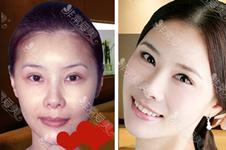 韓國李喜文醫生背景分析,建立eyemagic整形外科有哪三大優勢