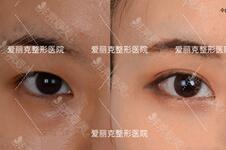 韓國醫生梁海元算是韓國做眼睛出名的醫生嗎?為什么?