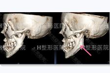 下頜骨切除手術有挽救余地嗎?韓國切多了怎么辦如何修復