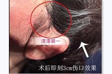 韩国拉皮手术好吗?多少钱?大拉皮小拉皮的区别是什么?