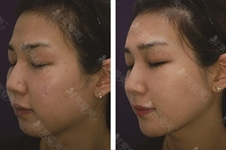 韩国DOCTORS皮肤科明星项目有哪些,治疗皮肤怎么样?位置在哪