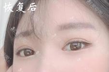 韩国laforet整形出名吗?位置在哪?做双眼皮案例效果如何?