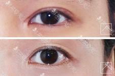 韩国Misoline整形医院针对双眼皮失败修复有哪些特色?