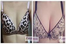 30岁女性隆胸时应该如何选择乳房形状?必妩魔滴隆胸日记