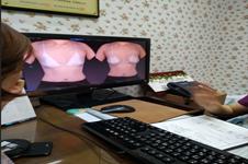 分享我在韩国pjs整形医院做假体隆胸的面诊记录,pjs隆胸价格