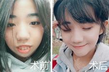 韩国下颌角手术比中国强在哪?中国医生赴韩是为了学这些