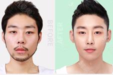 韓國男士臉部整容價格表曝光,文末這幾家醫院許多男生去