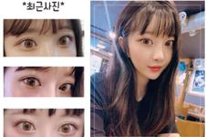 韩国网红都切的什么双眼皮,哪家医院做得好?