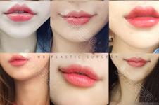 韓國做m唇和人中縮短到底要腫幾天?有什么后遺癥需要注意