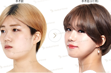 韓國JK金成植做眼鼻輪廓嗎?他在韓國口碑如何是老醫生嗎?