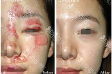 韓國做小疤痕修復多少錢?激光沒效果的話建議怎么做?