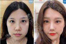 soonplus韩国官网案例曝光,内眼角修复这家医院有许多客人!