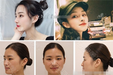 超美網紅鼻子照片模板,韓國整形醫院都能做!有圖有案例