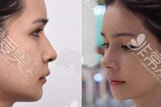 韓國GNG整形優勢分析,世人只知輪廓不曉鼻子修復案例超贊