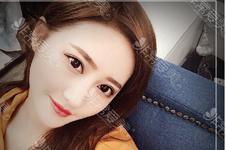 韩国双眼皮修复谁更好?听说洪镇柱双眼皮失败修复不错?