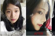 韓國kowon和美作整形修復鼻子怎么選?兩家案例帶你篩選分析