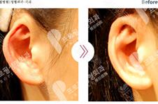 耳软骨隆鼻导致耳轮凹陷该如何修复?韩国哪家医院能做?