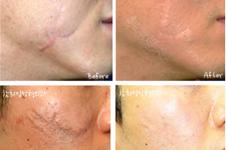 韩国面部疤痕祛疤费用大致多少钱?手把手教你算此行价格