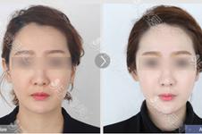 韩国皮肤管理排行榜,全面介绍哪家医院做哪个项目比较好