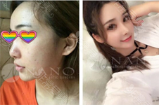 韩国nano鼻子做得高吗?不想要华丽风该选哪几家医院更合适