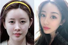 韩国PR整形擅长网红风双眼皮吗?揭秘院长卢京焕手术特色